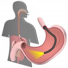Современные оперативные методы лечения рака желудка