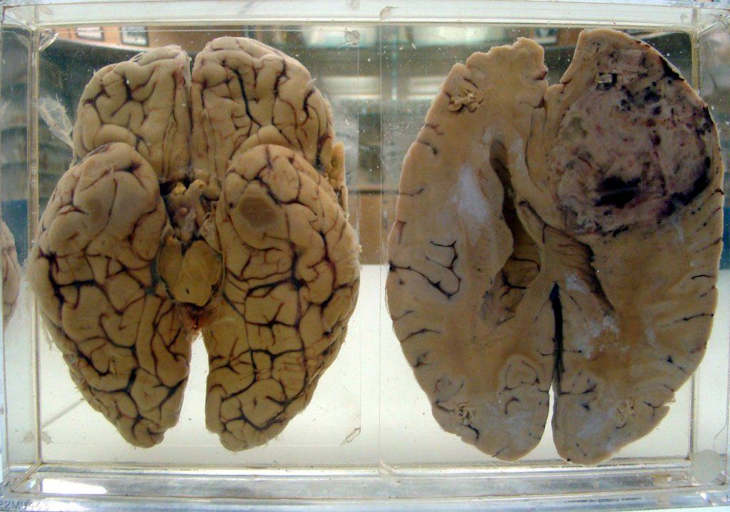 картинки отек головного мозга преданиям, изначально здесь