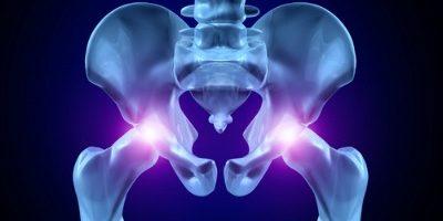 Современные методы лечения дисплазии тазобедренного сустава плечевой сустав и его связки