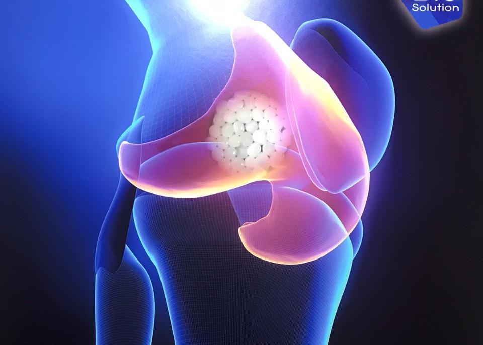 Замена коленного сустава без операции возможна. CartiLife.