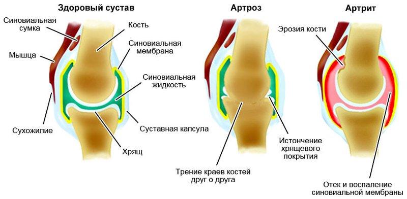 Артроз-коленного-сустава-медкор